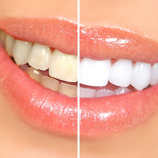 A before and after image of a person's teeth after undergoing teeth whitening
