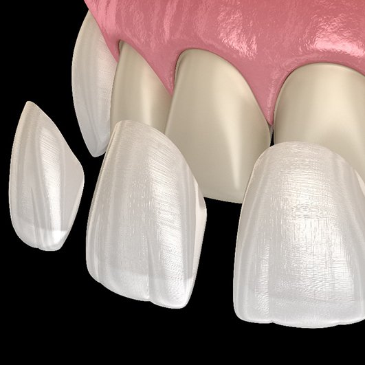 A digital image of veneers being placed onto the front surface of four teeth located on the upper arch